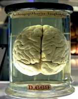 brain-wikipedia-image