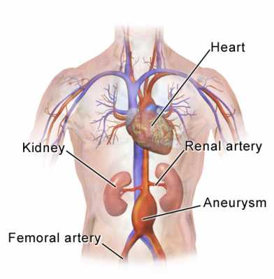 Abdominal aortic aneurysm location