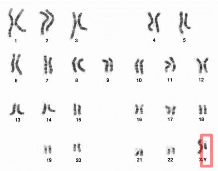 Y Chromosome Image: Wikipedia