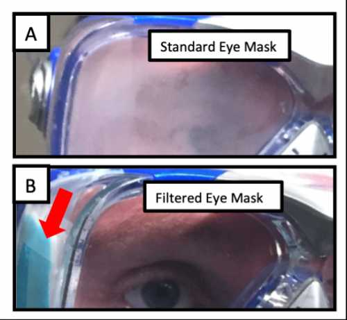 This shows the 5-minute image of the standard eye mask and the filtered eye mask, which demonstrated how a mask without a filter can really get fogged up.