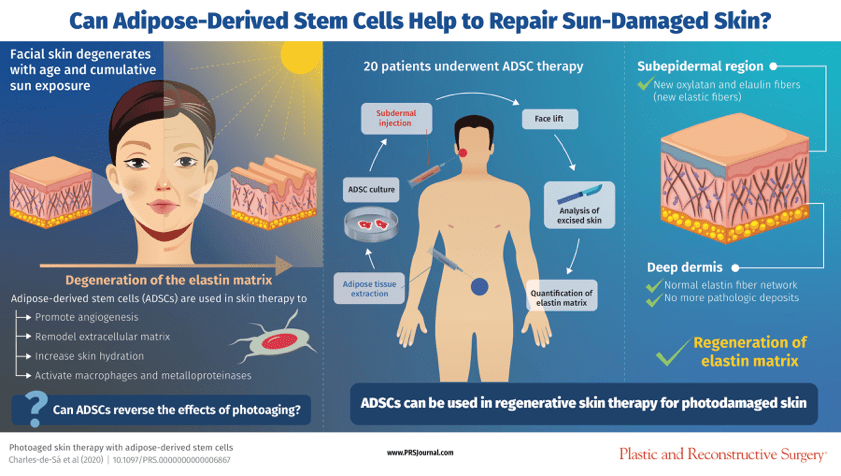 Photoaged Skin Therapy with Adipose-Derived Stem Cells