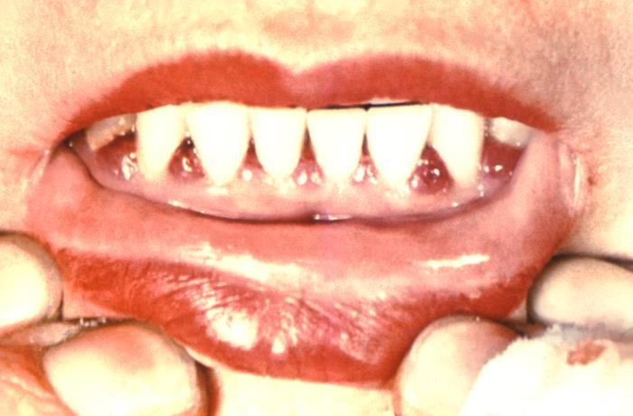 teeth-dental-cdc-phil-image
