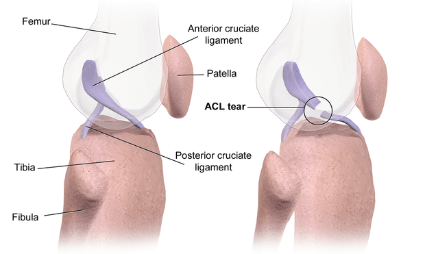 ACL_Tear-wikipedia-image
