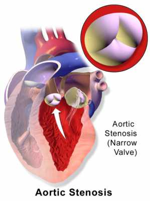 Aortic Stenosis Blaus Image Wikipedia