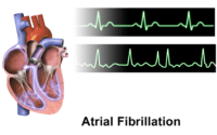 Normal rhythm tracing (top) Atrial fibrillation (bottom) Wikipedia image