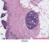 Atypia in Breast Tissue Elmore Image