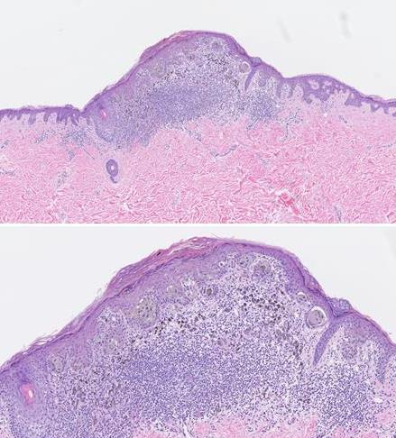 Elmore JG, Barnhill RL, Elder DE, Longton GM, Pepe MS, Reisch LM, Carney PA, Titus LJ, Nelson HD, Onega T, Tosteson ANA, Weinstock MA, Knezevich SR, Piepkorn MW. Pathologists' diagnosis of invasive melanoma and melanocytic proliferations: observer accuracy and reproducibility study. BMJ. 2017 Jun 28;357:j2813. doi: 10.1136/bmj.j2813. Erratum in: BMJ. 2017 Aug 8;358:j3798. PubMed PMID: 28659278; PubMed Central PMCID: PMC5485913.