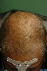 Cicatricial Alopecia Courtesy of Dr. Amy McMichael MD The Department of Dermatology Wake Forest Baptist Medical Center Winston-Salem, North Carolina