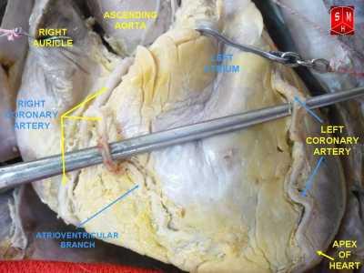 Coronary arteriesAuthor Anatomist90