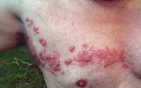 Herpes Zoster or Shingles of chest Wikipedia