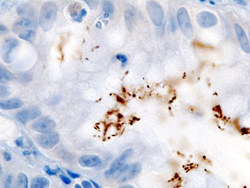 Immunohistochemical staining of H. pylori from a gastric biopsy- Wikipedia image