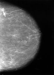 Mammogram showing small lesion - Wikipedia