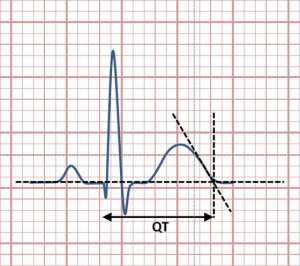 Electrocardiogram showing QT interval calculated by tangent method Wikipedia image