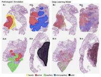 Visualization on sample whole-slide images of the lung cancer histologic patterns identified by pathologists compared to those detected by a new machine learning model developed by researchers at Dartmouth's Norris Cotton Cancer Center. The team rendered the image by overlaying color-coded dots on patches based on decisions generated by their computer model. A subjective qualitative assessment by pathologist annotators confirmed that the patterns detected on each slide are on target. CREDIT Hassanpour Lab, Dartmouth's Norris Cotton Cancer Center
