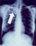 Tuberculosis creates cavities visible in x-rays like this one in the patient's right upper lobe. Wikipedia