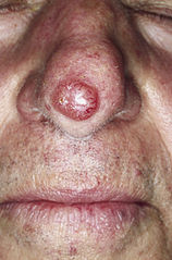 Example of one type of basal cell skin cancer