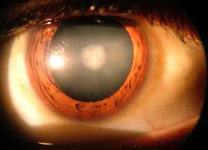 cataract-eye-wikipedia Cataract in Human Eye  author Rakesh Ahuja, MD
