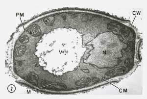 This transmission electron microscopic (TEM) image revealed some of the ultrastructural morphology displayed by a Candida sp. fungal organism. CW = cell wall, PM = plasma membrane, M = mitochondria, V = vacuole, and N = nucleus.