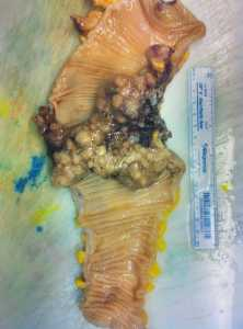 """Large Colon Cancer Arising in Adenoma"" by Ed Uthman is licensed under CC BY 2.0"