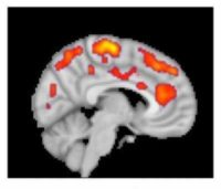 This combined MR/PET image highlights areas of the brain in which patients with fibromyalgia were found to have increased glial activation, compared with unaffected control volunteers. Credit: Marco Loggia, PhD, Martinos Center for Biomedical Imaging, Massachusetts General Hospital