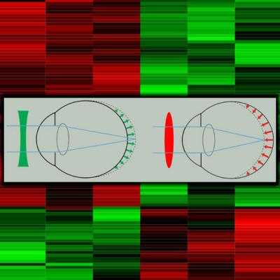 This image shows the effect of negative (green) and positive (red) lenses on eye growth and the heatmap depicting clusters of genes differentially expressed in the retina in response to optical defocus. Credit: Andrei V. Tkatchenko