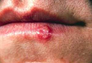 This photograph depicts a close-up of the lips of a patient with a herpes simplex lesion on the lower lip, due to the herpes simples virus-1 (HSV-1) CDC image