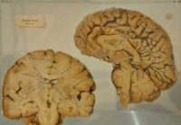 """""""The human Brain"""" by Kristian Mollenborg is licensed under CC BY 2.0"""