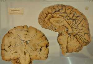 """The human Brain"" by Kristian Mollenborg is licensed under CC BY 2.0"