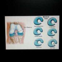 """""""Meniscus adalah tisu/rawan berbentuk huruf C yang berfungsi mencegah dua tulang bergesel di antara satu sama lain di bahagian lutut. Tisu meniscus yang koyak berpunca kebiasaannya daripada bersukan yang melibatkan pergerakan lutut yang banyak. Warga emas"""" by Rawatan Alternatif Shah Alam is licensed under CC BY 2.0"""