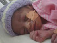 """""""Premature baby"""" by Elin B is licensed under CC BY 2.0"""