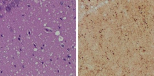 (Left) Staining shows spongiform degeneration. (Right) Staining shows intense misfolded prion protein. Credit: Case Western Reserve University School of Medicine