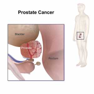 Prostate Cancer - Wikipedia