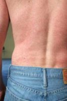 This image depicts a posterior view of a patient's back, captured in a clinical setting, upon presenting with this blotchy rash. After a diagnostic work-up, it was determined that the rash had been caused by the Zika virus. Note: Not all patients with Zika get a rash CDC image